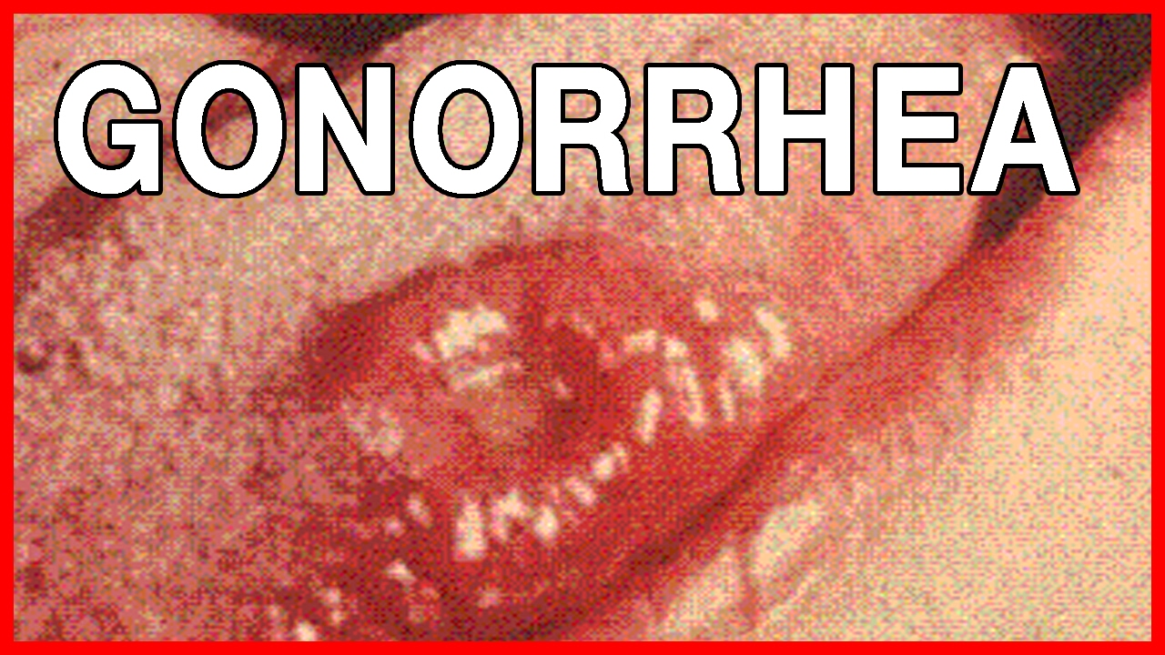 Oral Gonorrhea In The Throat Gonorrhea Mouth - Bing...