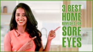 3 simple home remedies for sore eyes treatment