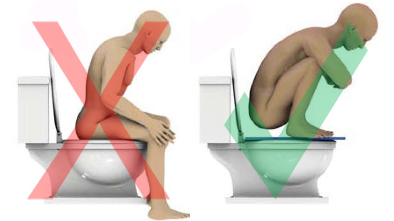 Watch Are You Pooping Wrong video