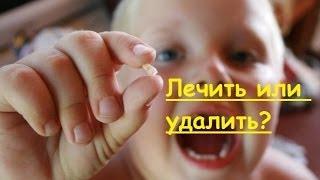 Зачем лечить зубы / Удаление дешевле лечения / Позитивная стоматология / SunSmileClinic(, 2014-03-25T10:23:45.000Z)
