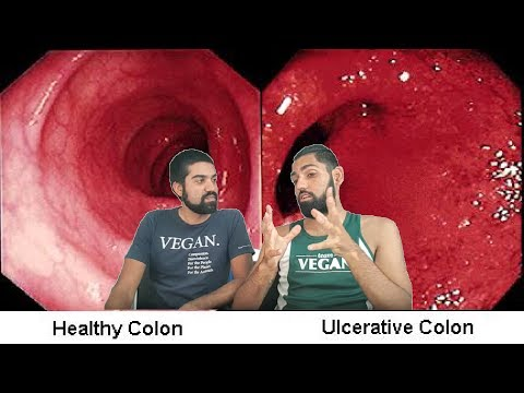 What Causes Ulcerative Colitis & Crohns Disease? How to Cure it?