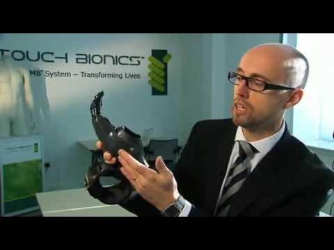 ProDigits  primo guanto bionico
