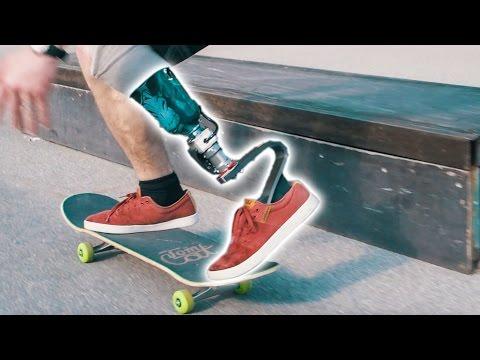 Testing a New EXTREME PROSTHETIC LEG