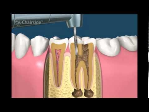 Как пломбируют каналы зуба видео
