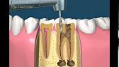 Стоматологические визиографы и радиовизиографы. Если вы хотите купить визиограф стоматологический или дентальный, датчик для визиографа,