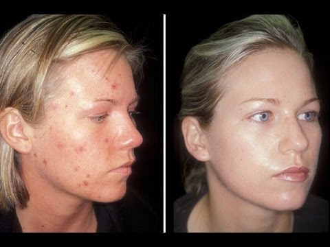 HOW TO: CURE ACNE!!!! - CLEAR SKIN IN ONE WEEK - YouTube
