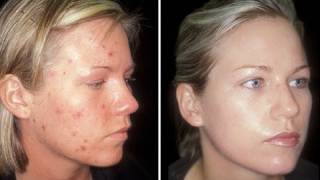 HOW TO: CURE ACNE!!!! - CLEAR SKIN IN ONE WEEK