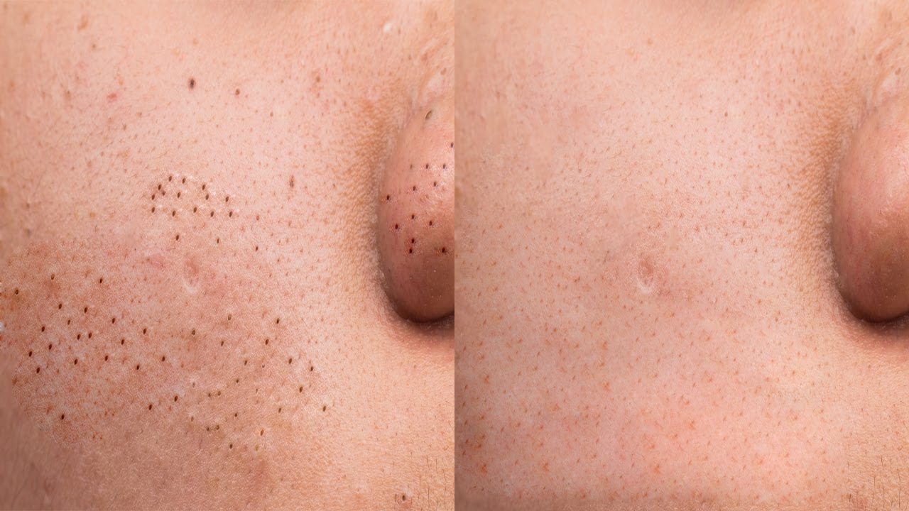 What causes chest acne