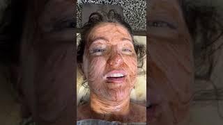 Капилляротерапия в Теремке Жили Были
