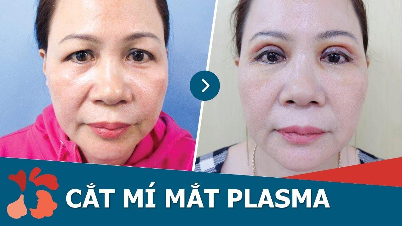 Tái khám cắt mí mắt Plasma sau 30 ngày tại Kangnam