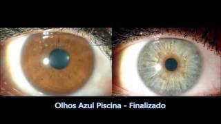 vuclip Resultados de Biokinesis - Biokinesis Official (Funciona Mesmo!) 2016