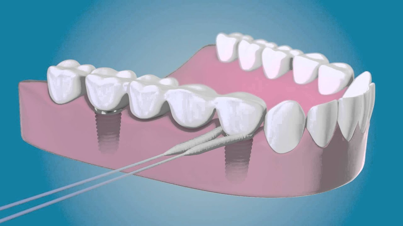 Reinig Rondom Uw Implantaten Met De Tepe Bridge Amp Implant