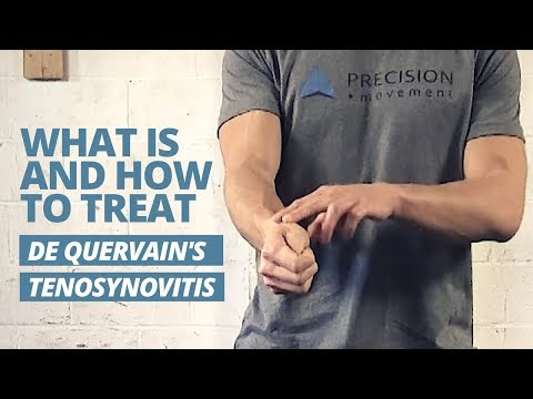 3 Techniques for De Quervain's Tenosynovitis to Relieve Wrist & Thumb Pain