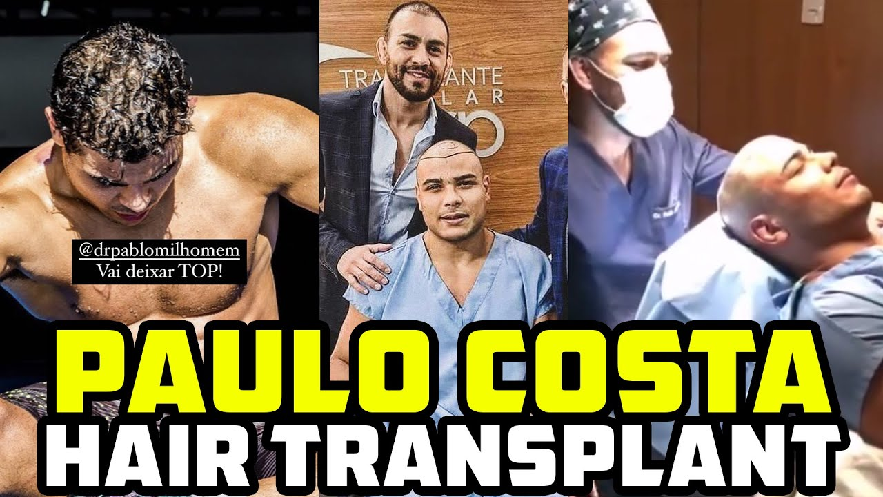 """Paulo Costa Gets A Hair Transplant Because Of """"Secret Juices"""" Side Effects?"""