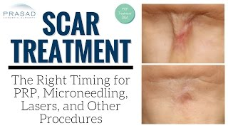 Modes and Timing of Treatment for Wounds and Older Scars, Including Acne Scarring   Amiya Prasad, M.D.