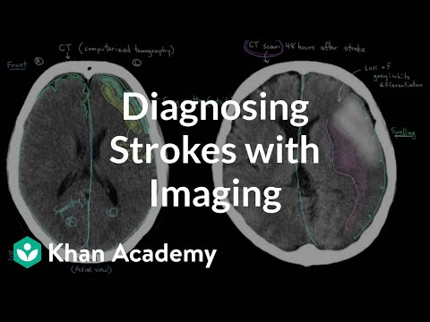 Diagnosing strokes with imaging CT, MRI, and Angiography | NCLEX-RN | Khan Academy