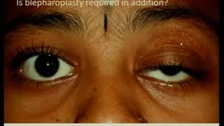 Apa itu ptosis atau kelopak mata yang rendah..