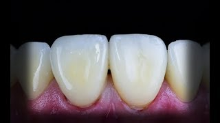Bonding of veneers; (3) the final step