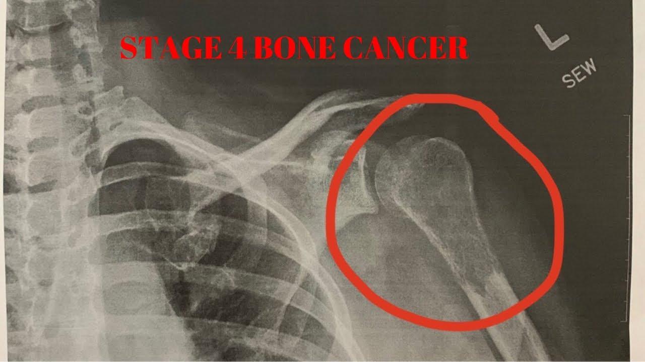 Orthopedic Shoulder Update. (Stage 4 bone cancer) #Orthopedicsurgery