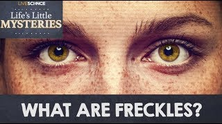 What are Freckles?