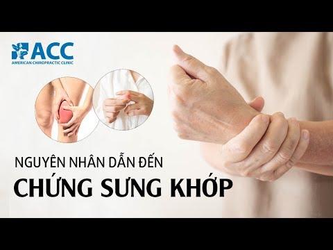 [ACC] Chứng sưng khớp: Nguyên nhân do đâu và cách chữa trị thế nào?