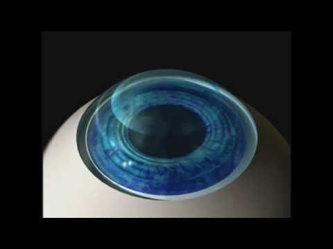 Лазерная коррекция зрения око рязань отзывы