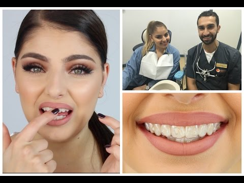 My Toothy Tale - INVISALIGN, VENEERS? + Q+A With My Dentist