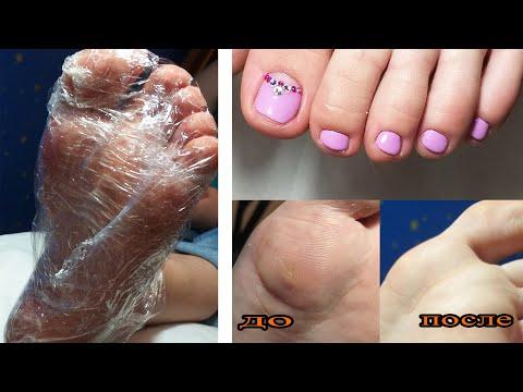 ❤ ПЕДИКЮР + ОБРАБОТКА СТОП ❤ TALARIS ❤ ЭКСПРЕСС педикюр ❤ СТРАЗЫ на ногтях ❤