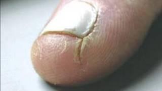 DermTV - How to Heal Cracked Fingertips [DermTV.com Epi #125]
