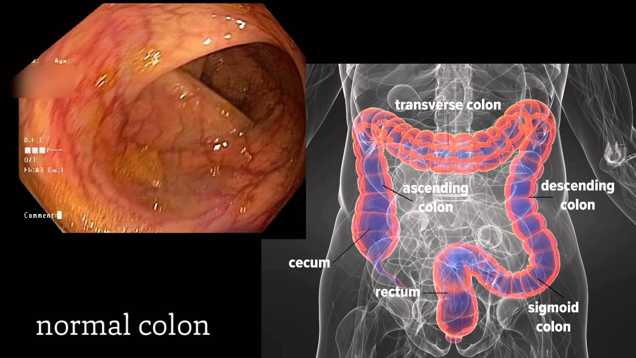 hight resolution of colon polyp diagram