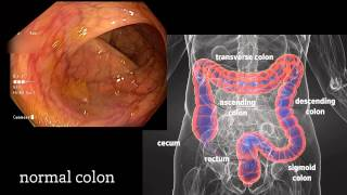 Colonoscopy: A Journey Though the Colon and Removal of Polyps