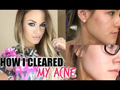 How I Cleared My Acne thumbnail