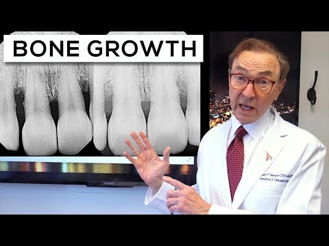 AMAZING Results With LANAP | Gum Disease Treatment