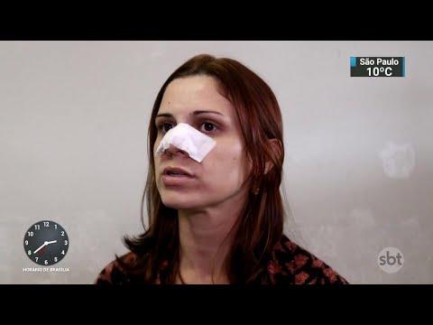 Mulher denuncia assessor parlamentar por agressão no interior de SP | SBT Notícias (11/07/18)