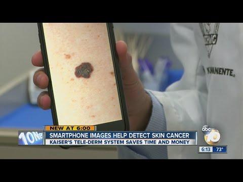 Smartphone images help detect skin cancer