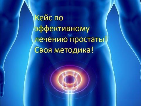 Ангина - симптомы, фото, лечение в домашних условиях, чем