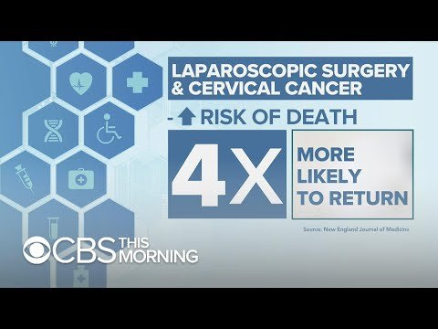 Laparoscopic surgery for cervical cancer led to higher risk of death, study shows
