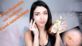 Comment faire partir les cicatrices d'acné ? astuce efficace et naturelle