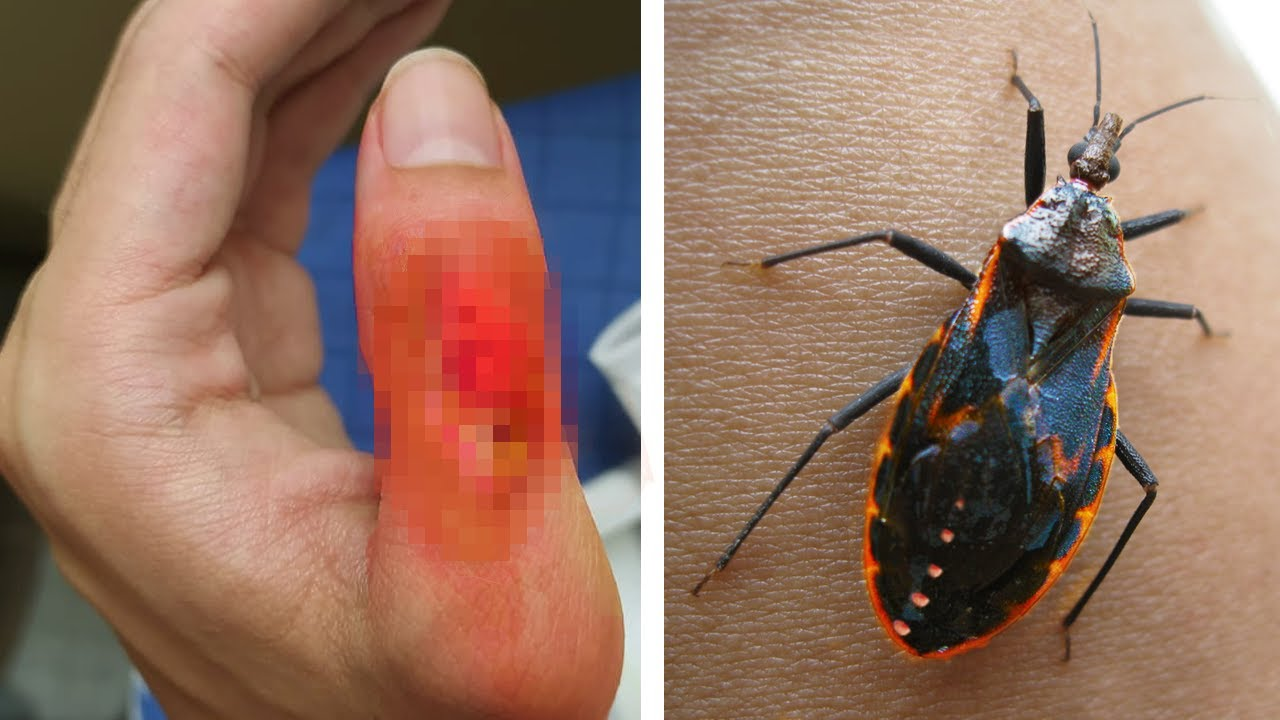Download 10 Dangerous Animals You Should Never Touch!
