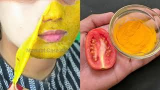 1 ही बार के इस्तेमाल से चेहरा इतना गोरा खूबसूरत कर देगा की लोग देखते रह जायेंगे Spotless Bright Skin