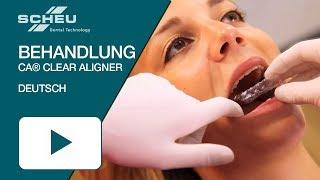 Katharinas erfolgreiche CA® CLEAR ALIGNER Behandlung