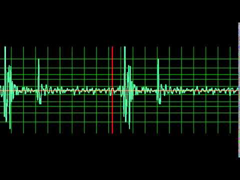 Normal Heart Sound- normal speed