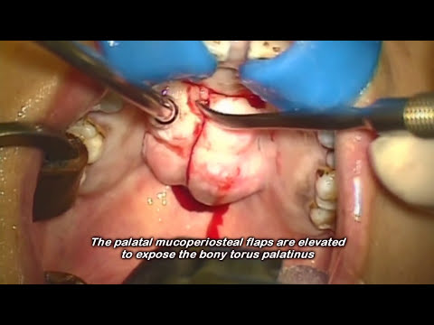 Tumor/Lump/Mass on the Palate, Torus Palatinus