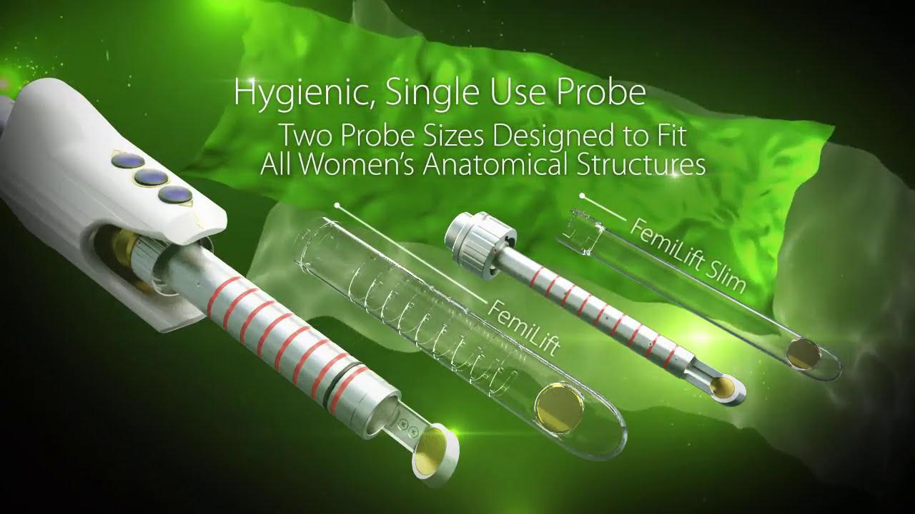 Femilift Co2 Laser Vaginal Rejuvenation Youtube