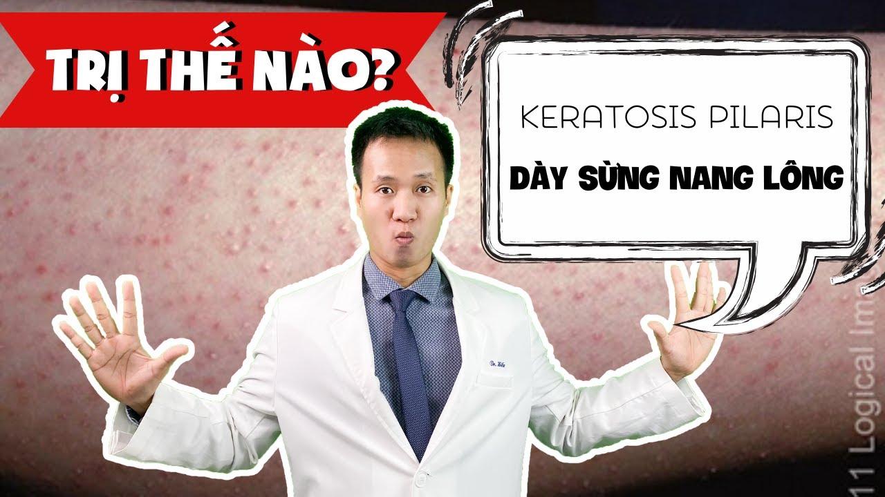 Dày sừng nang lông  - Viêm nang lông là gì ? Cách xử trí chuẩn Y KHOA - Keratosis Pillaris | Dr Hiếu