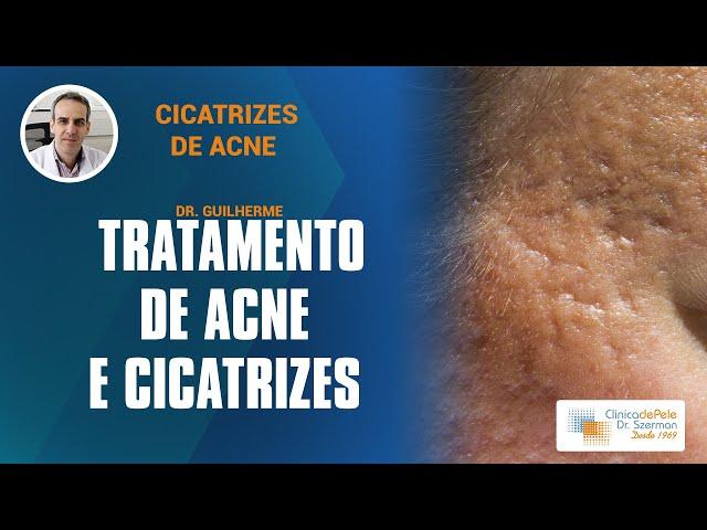 Cicatrizes de Acne em 3 minutos
