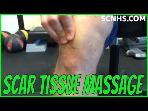 Self Scar Tissue Massage | Post Surgery Treatment
