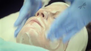 tca chemical peel skin tech the laser and skin clinic