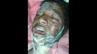 Syed Mustafa critically Burnt at Mehdipatnam Military Area, Hyderabad
