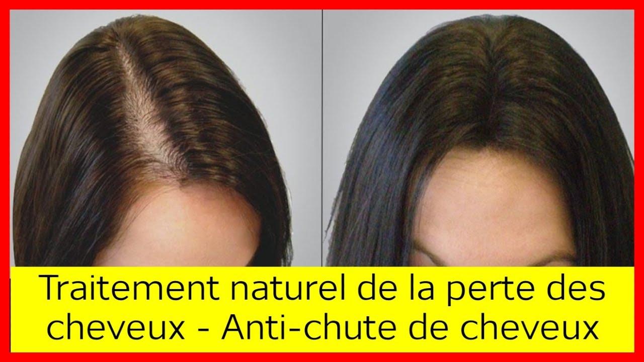 Traitement naturel contre la perte des cheveux - Remèdes ...